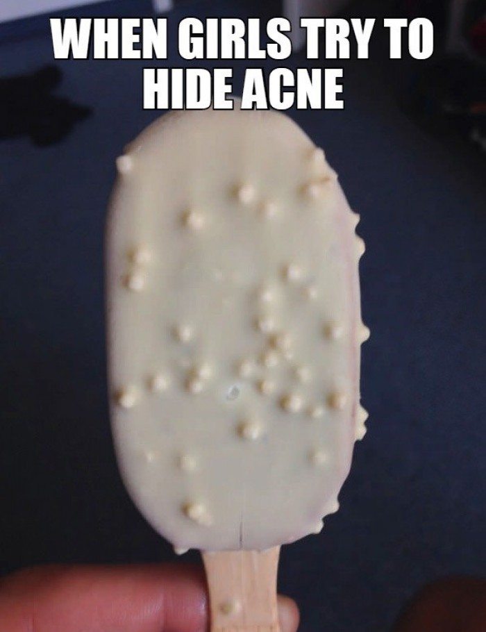 When girls try to hide acne