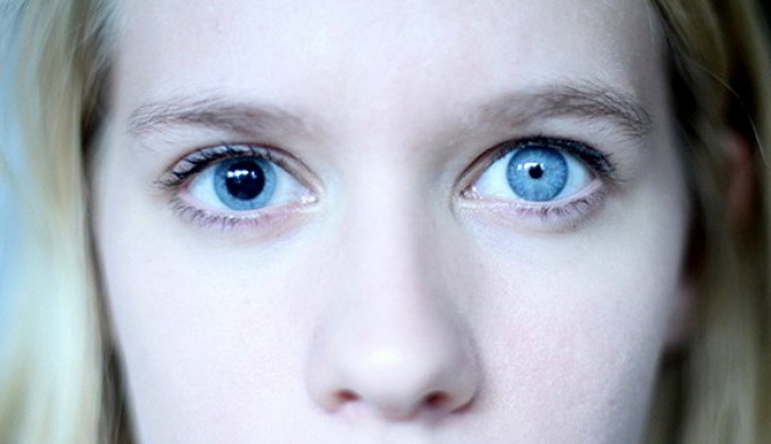 Anisocoria explained