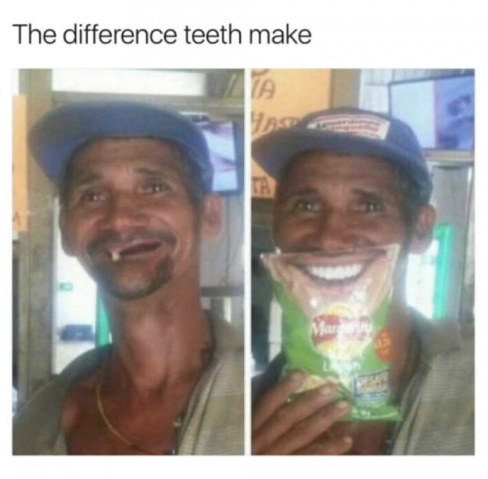 The difference teeth make